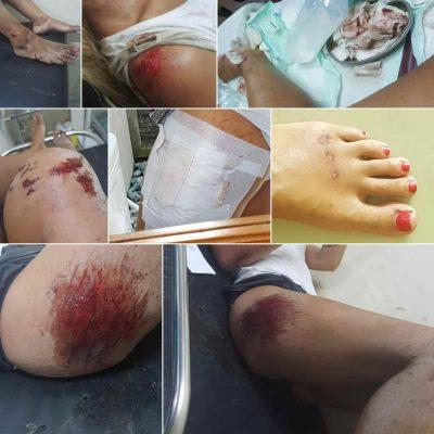 Verletzungen nach einem Unfall mit einem Scooter